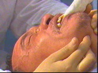 癫痫发作时的应急措施